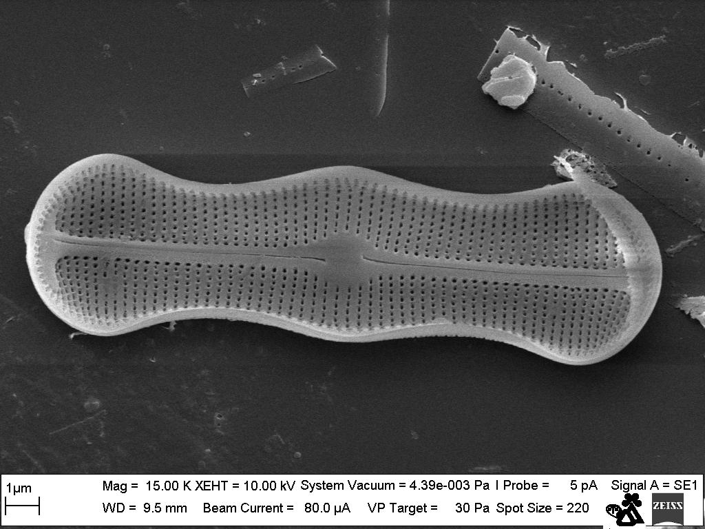 Diatomaceous alga (Bacillariophyceae class) Achnanthes trinodis under a scanning electron microscope.