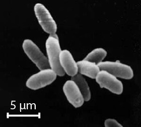 Cells of Halobacterium, image taken by a high-powered microscope. The individual cells in this image are about 5 microns long (scale is only approximate)