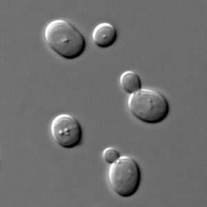 A Microscopy image of yeast, they are small ovular shaped cells, some with lumps within them or a smaller second ovular cell coming off of a side