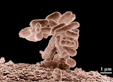 A microscopic recreation of a bacteria, the cells conglomerate in a tower that leans toward the left