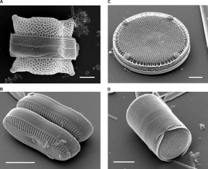 Four diatoms with varying shapes. Top right has a rectangular shape with a thicker band across it, top right is a round disk shape, bottom left is two loosely cylindrical shapes, and bottom left is a cylinder.