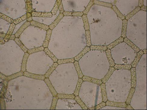 A microscopic photo of green algae cells