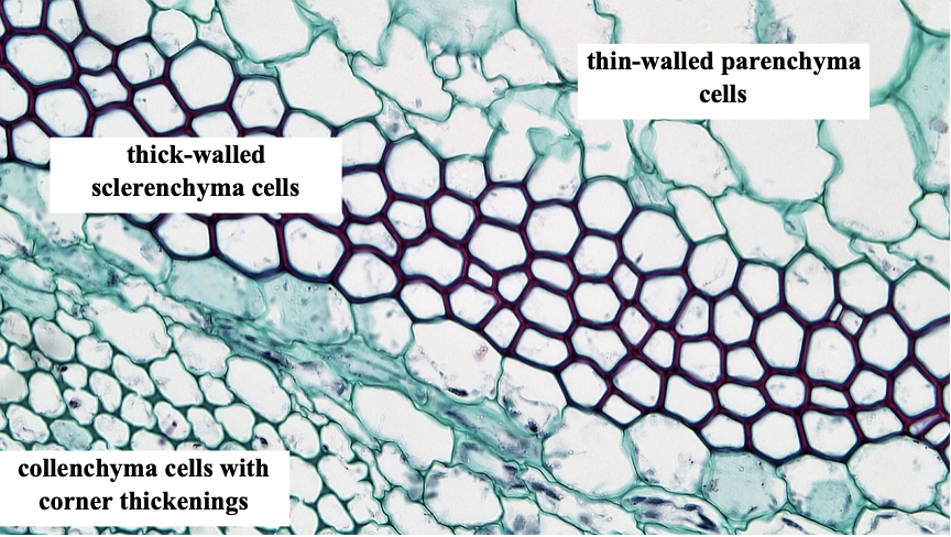 Microscopic photo with blue, thin-walled parenchyma cells, purple thick-walled sclerenchyma cells