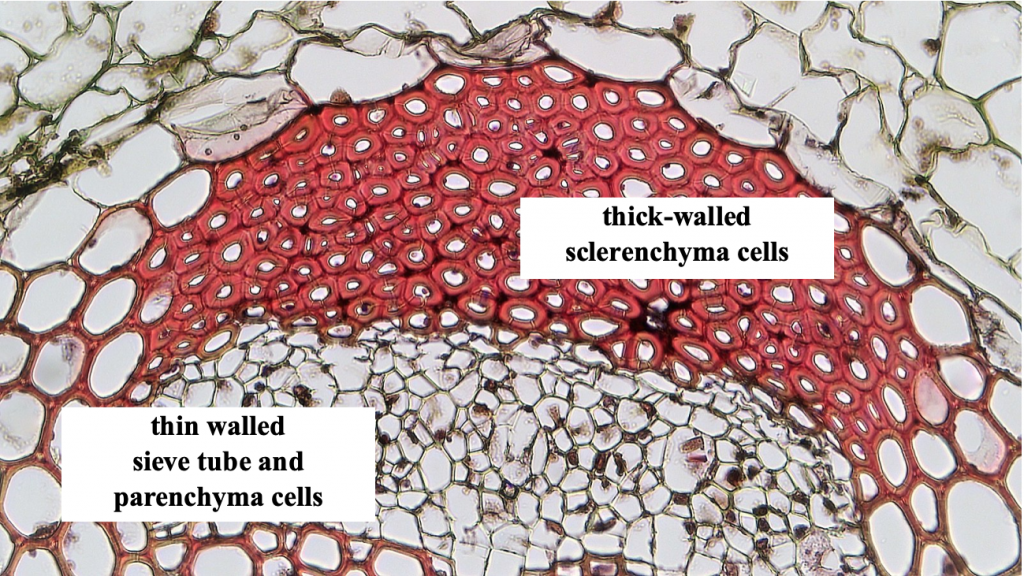 cross sections of stem tissue showing a variety of cell types including thin walled sieve tube and parenchyma cells and thick-walled sclerenchyma cells