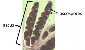 Small brown ascospores inside the ovular ascus
