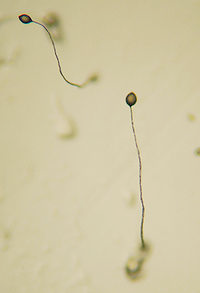 A microscopic closeup. Two heads of cellular slime mold with thin, spindly tales extending from them