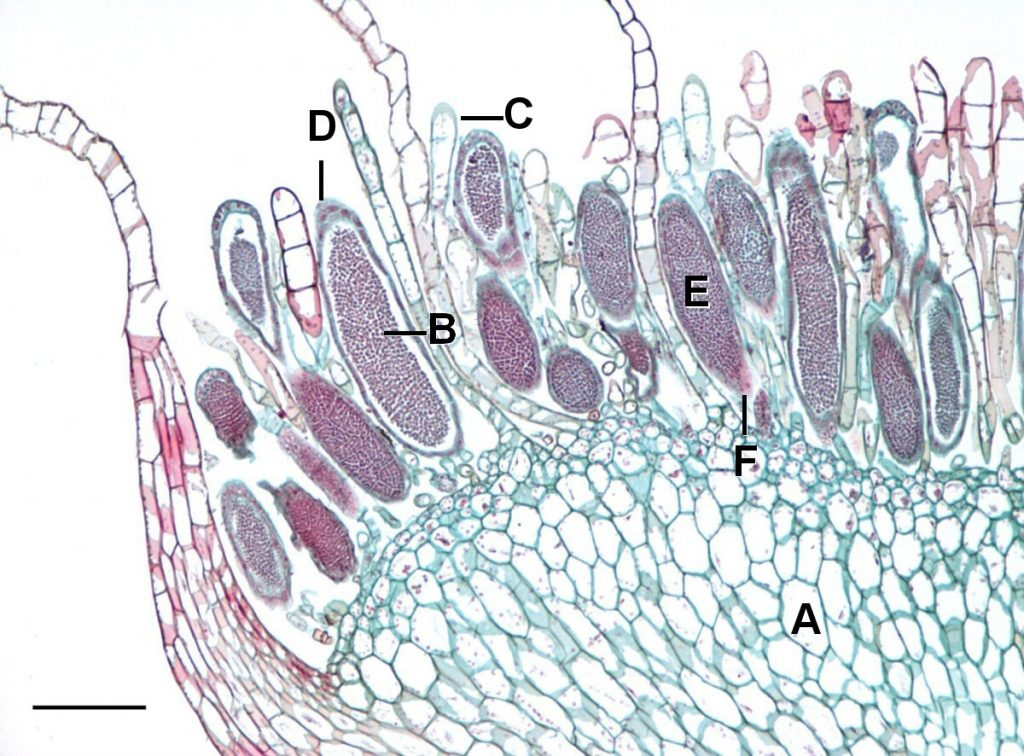 Transverse section of the antheridial head of Mnium after opening. The antheridium can be seen filled with spores ready to be released. A-Male gametophyte, B-Antheridium, C-Paraphyses, D-Sterile jacket, E-Spermatogenous tissue, F-Stalk. Scale = 0.2mm.