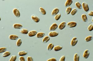 Many ovular microalgal cultures on a microscope slide, they are a dark brown with bubble-like formations within